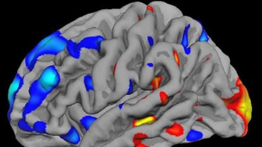 تجارب مذهلة قد تقودنا لعلاج التوحد  وذلك باستخدام بكتيريا تتحدث للدماغ